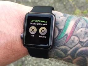 Tattoogate und Hautirritationen: Probleme mit der Apple Watch
